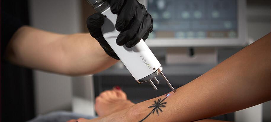 Usuwanie Tatuażu W Bieńkowscy Clinic Bydgoszcz Częstochowa