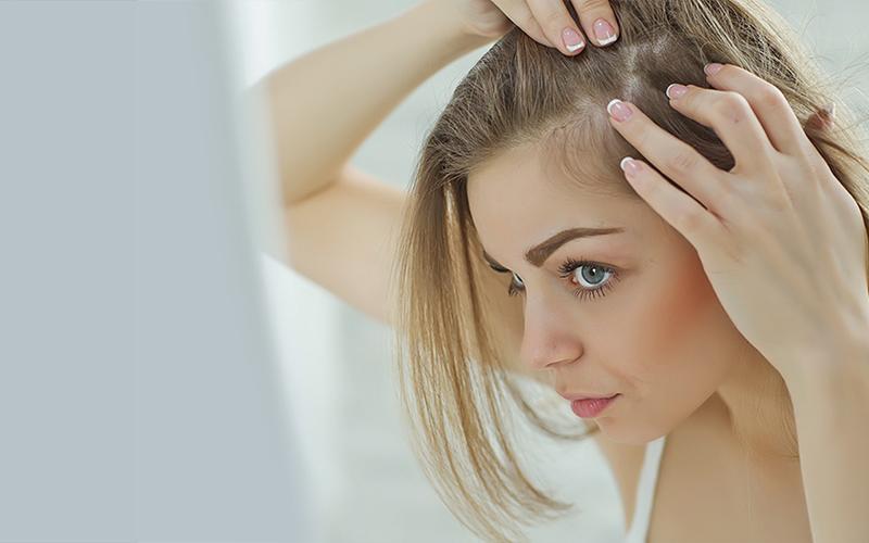wypadanie włosów po 40 roku życia