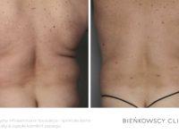 Zdjęcia przed i po zabiegu odsysania tkanki tłuszczowej liposukcji w Bieńkowscy Clinic Bydgoszcz i Częstochowa