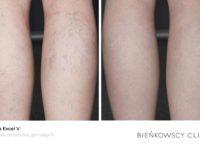 Zdjęcia przed i po zabiegu usuwania żylaków w Bieńkowscy Clinic Bydgoszcz i Częstochowa