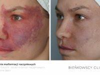 Zdjęcia przed i po zabiegu usuwania malformacji naczyniaków w Bieńkowsc