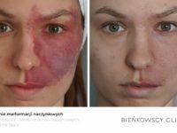 Zdjęcia przed i po zabiegu usuwania malformacji naczyniaków w Bieńkowscy Clinic Bydgoszcz i Częstochowa
