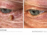 Zdjęcia przed i po zabiegu dermatochirurgicznym w Bienkowscy Clinic Bydgoszcz i Częstochowa