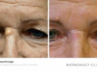 ZZdjęcia przed i po zabiegu dermatochirurgicznym w Bienkowscy Clinic Bydgoszcz i Częstochowa