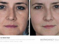 Zdjęcia przed i po zabiegu usuwania blizn, przebarwień, rozstępów, wiotkości skóry w Bieńkowscy Clinic Bydgoszcz i Częstochowa