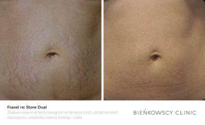 Zdjęcia przed i po zabiegu usuwania rozstępów w Bieńkowscy Clinic Bydgoszcz i Częstochowa