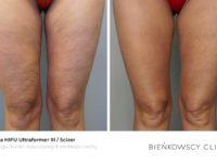 Zdjęcia przed i po zabiegu redukcji usuwania tkanki tłuszczowej i cellulitu Scizer HIFU w Bienkowscy Clinic Bydgoszcz i Częstochowa