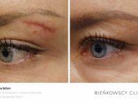 Zdjęcia przed i po zabiegu usuwania blizny w Bieńkowscy Clinic Bydgoszcz i Częstochowa