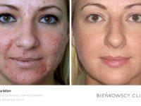 ZdjęZdjęcia przed i po zabiegu usuwania blizn w Bieńkowscy Clinic Bydgoszcz i Częstochowa