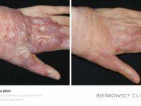 Zdjęcia przed i po zabiegu usuwania blizn w Bieńkowscy Clinic Bydgoszcz i Częstochowa